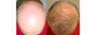 Hair loss Las Vegas