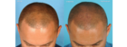 Hair restoration Las Vegas