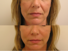 Juvederm in Beverly Hills