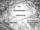 SubArachnoid Space w/ Windy and Carl & Paik