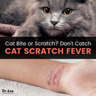 What is cat-scratch fever?