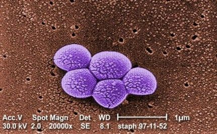 Calling on Hospitals to Prevent Spread of MRSA