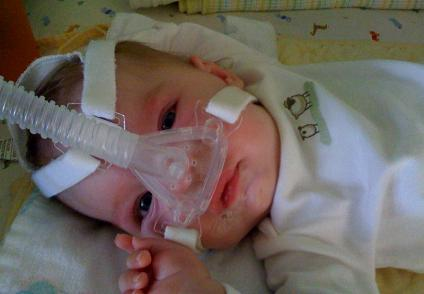 What is Spinal Muscular Atrophy (SMA)?
