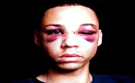Victim of Anti-Gay Beating: Violence Against LGBTs Has to Stop