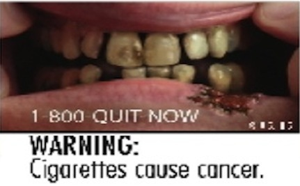 Big Tobacco Sues FDA Over Shocking Warning Labels