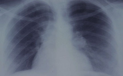 iCancer? New App Shows Smokers Their Lungs