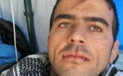 Iranian Refugees Sew Lips Together, Go on Hunger Strike