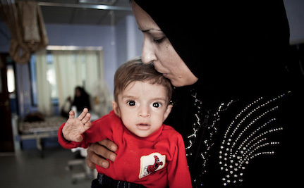 Cuts that Heal: How Heart Surgeries Are Transforming Iraq