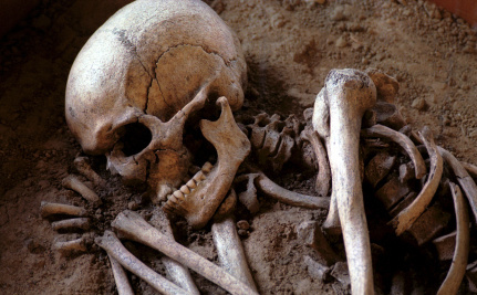 5 Prehistoric People Who Prove Our Ancestors Took Care of the Disabled