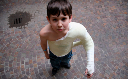 How to Tell If a Child is Being Abused, or Has Brittle Bone Disease