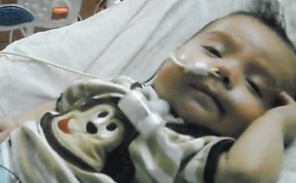How 3D Printing Saved This Baby�s Life