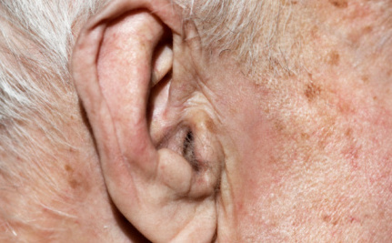 Be Nice to Your Ears: They Could Save Your Life