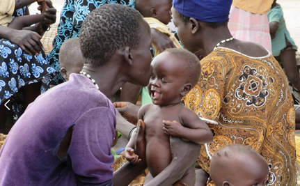 Aid for Africa Endowment Scholar Examines Why Malnutrition Persists in Sudan