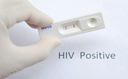 HIV Treatment Should Begin Immediately After Diagnosis, Say Experts
