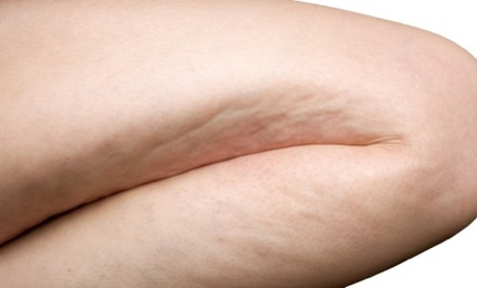 Natural Help for Cellulite