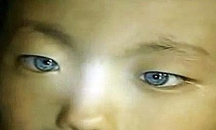 Eyes Boy China Boy Born With Cat-like Eyes