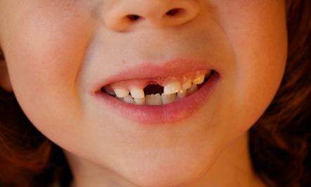 Little Cavities