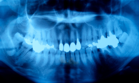 Brain Tumors From Dental X-Rays: Should I be Worried?