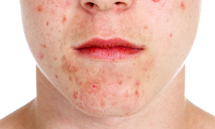 5 Most Common Skin Problems