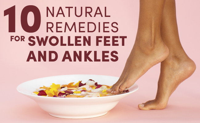 10 Natural Remedies For Swollen Feet And Ankles | Care2 Healthy Living