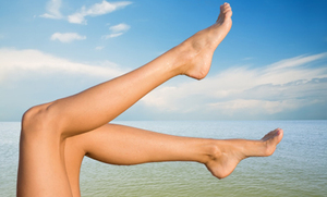 6 Natural Approaches to Varicose Veins