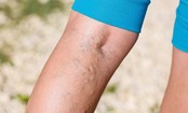 7 Essential Facts About Varicose Veins