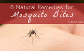 6 Natural Remedies for Mosquito Bites