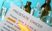 Study Links Ethnicity to Prostate Cancer Risk