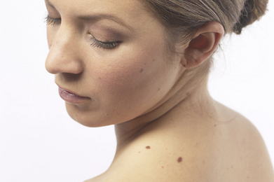 Lighten Age Spots and Freckles Naturally