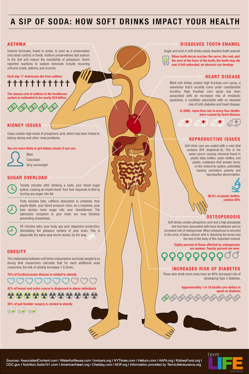 This infographic shows how bad fizzy drinks are.