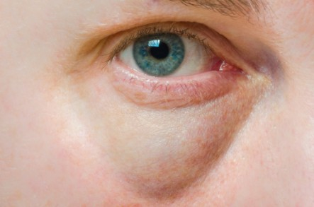 4 Eye Health Signs You Should Watch Out For | Care2 Healthy Living
