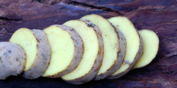 15 Surprising Uses for Potatoes