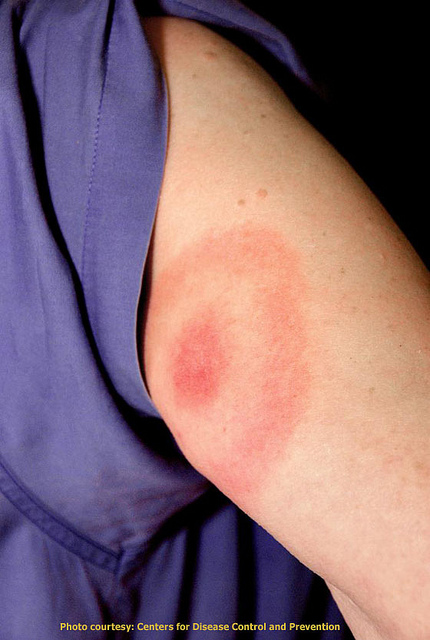 Bullseye rash that is a symptom of Lyme disease