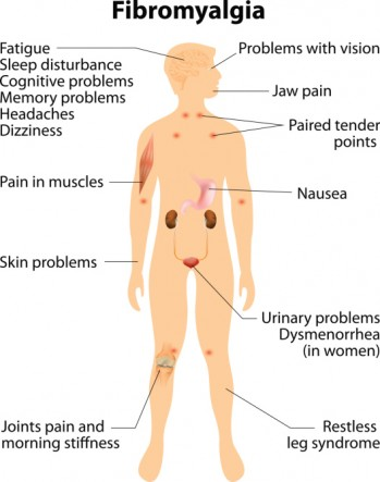 fibromyalgia chart