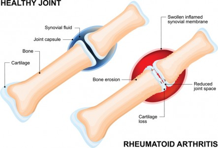 What-is-rheumatoid-arthritis