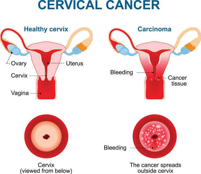 Cervical Cancer Diagram