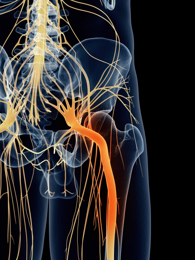 What Is Sciatica Care2 Healthy Living