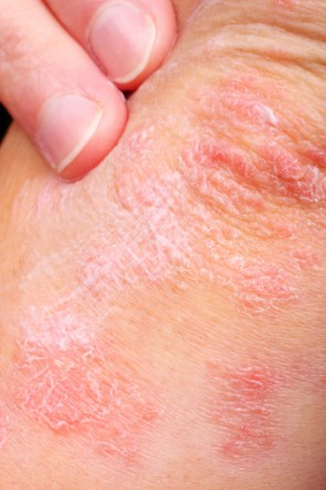 What-is-Eczema?