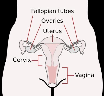 Endometriosis-Causes