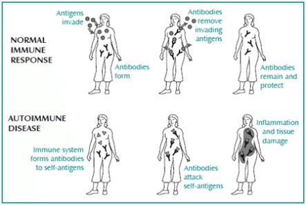 Is Endometriosis an Autoimmune Disease