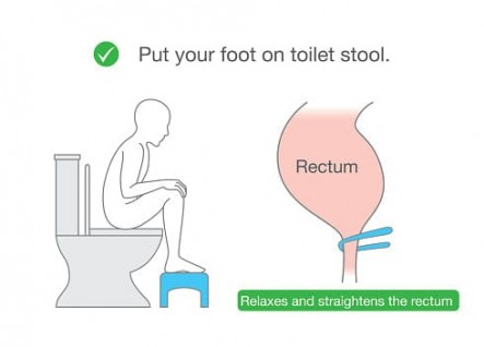 Squatty-potty-for-hemorrhoids