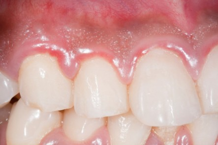 What-is-Gingivitis