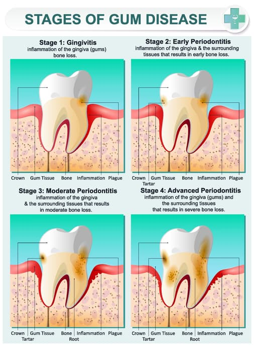 gingivitis-treatment