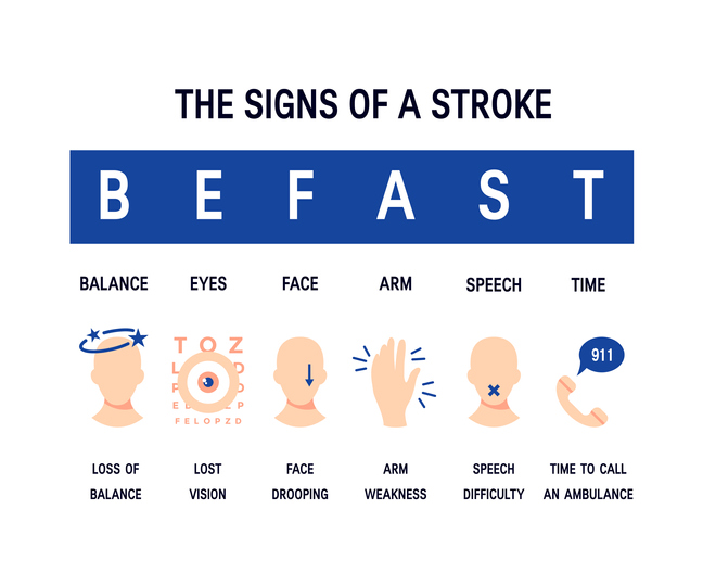 The Signs of a Stroke graphic