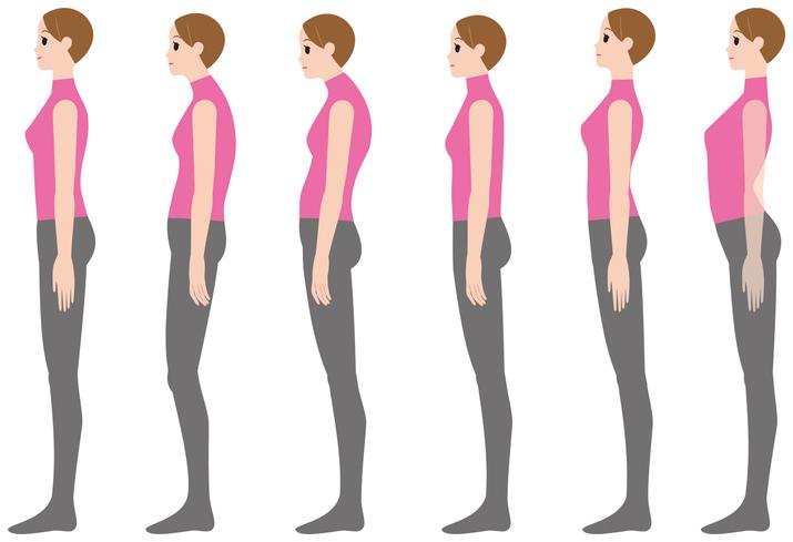 PrintCorrect posture and bad posture